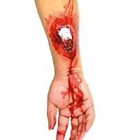Heridas Cicatrices Látex